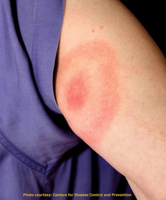 The characteristic bull's-eye patterned rash after the bit from a blacklegged tick infected withBorrelia burgdorferi. Photo: Centers for Disease Control